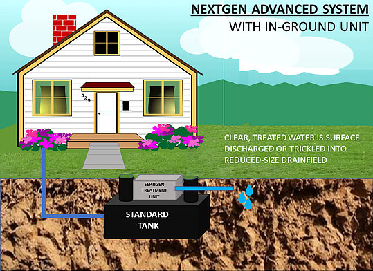 NextGen Advanced System with In-Ground Unit